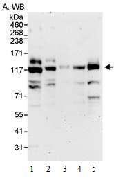 Western blot - PP4R1 antibody (ab70624)
