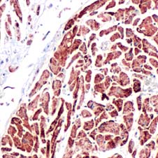 Immunohistochemistry (Formalin/PFA-fixed paraffin-embedded sections) - Prohibitin antibody (ab70672)