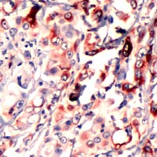 Immunohistochemistry (Formalin/PFA-fixed paraffin-embedded sections) - RPS6 (phospho S240 + S244) antibody, prediluted (ab70673)