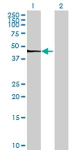 Western blot - TBC1D16 antibody (ab70683)