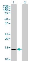 Western blot - CLDND2 antibody (ab70684)
