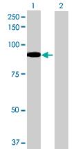 Western blot - ALDH16A1 antibody (ab70686)