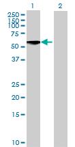 Western blot - Anti-Netrin 5 antibody (ab70688)