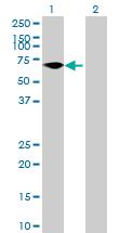 Western blot - FLJ38451 antibody (ab70691)