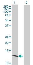 Western blot - ATP6V1G3 antibody (ab70692)