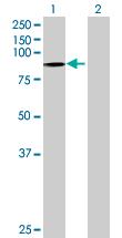 Western blot - PODN antibody (ab70694)