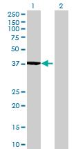 Western blot - LRRC39 antibody (ab70703)