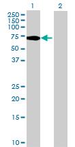 Western blot - C1orf87 antibody (ab70704)