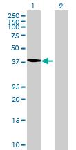 Western blot - TBC1D20 antibody (ab70705)