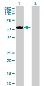 Western blot - ENPP6 antibody (ab70710)