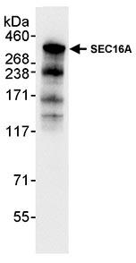 Immunoprecipitation - SEC16A antibody (ab70722)