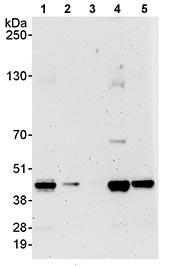 Western blot - PRMT1 antibody (ab70724)