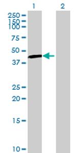 Western blot - UGT3A1 antibody (ab70735)
