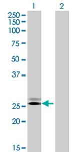Western blot - GRPEL2 antibody (ab70738)