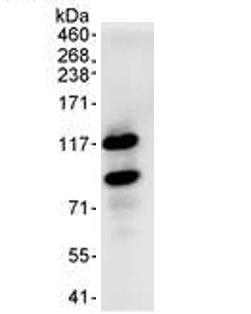 Immunoprecipitation - HURP antibody (ab70744)