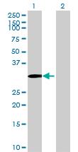 Western blot - AMMECR1 antibody (ab70799)