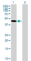 Western blot - ARHGAP25 antibody (ab70820)