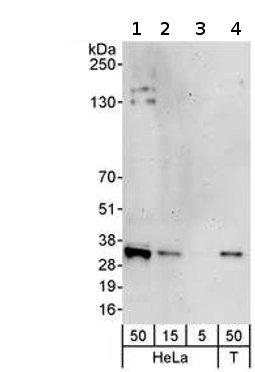 Western blot - MIS12 antibody (ab70843)