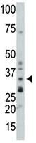 Western blot - Protein Phosphatase 1 beta antibody (ab70844)