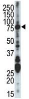 Western blot - Chk2 antibody - C-terminal (ab70860)