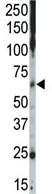 Western blot - Casein Kinase 1 gamma 2  antibody - C-terminal (ab70862)