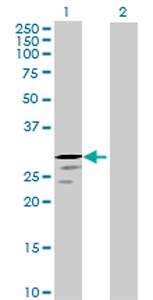 Western blot - TRY1 antibody (ab70864)