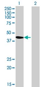 Western blot - ASZ1 antibody (ab70865)