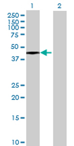 Western blot - ADHFE1 antibody (ab70868)