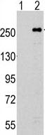 Western blot - mTOR antibody (ab70871)