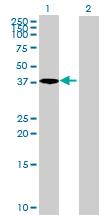 Western blot - ACTRT1 antibody (ab70876)