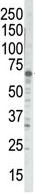 Western blot - GRK5 antibody - C-terminal (ab70877)