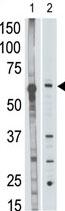 Western blot - MMP25 antibody - C-terminal (ab70881)
