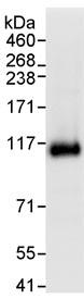 Immunoprecipitation - USP10 antibody (ab70895)