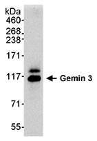Immunoprecipitation - Gemin 3 antibody (ab70896)