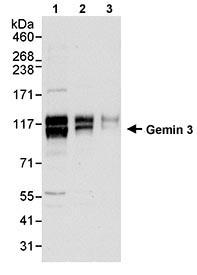 Western blot - Gemin 3 antibody (ab70896)