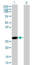 Western blot - CCBE1 antibody (ab70900)