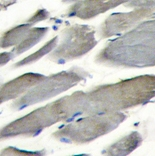 Immunohistochemistry (Formalin/PFA-fixed paraffin-embedded sections) - PI 3 Kinase catalytic subunit gamma antibody (ab70903)