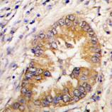 Immunohistochemistry (Formalin/PFA-fixed paraffin-embedded sections) - Borealin/CDCA8 antibody (ab70910)
