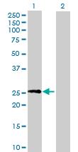 Western blot - TTC9B antibody (ab70913)