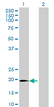 Western blot - C1orf84 antibody (ab70920)