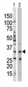 Western blot - AMPK beta 1 antibody - Aminoterminal end (ab70922)