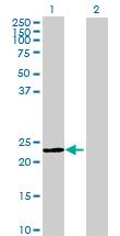 Western blot - MEI1 antibody (ab70929)