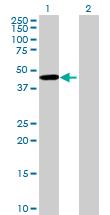 Western blot - ZNF385B antibody (ab70931)