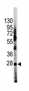 Western blot - Hes1 antibody - Aminoterminal end (ab70933)