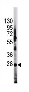 Western blot - Hes1 antibody - Aminoterminal end (ab70933)