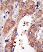 Immunohistochemistry (Formalin/PFA-fixed paraffin-embedded sections) - FACL4 antibody - Aminoterminal end (ab70937)