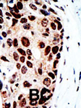Immunohistochemistry (Formalin/PFA-fixed paraffin-embedded sections) - HDAC9 antibody - Carboxyterminal end (ab70954)