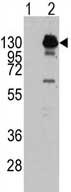Western blot - PDGF Receptor alpha antibody (ab71009)
