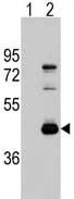 Western blot - ATG4B antibody (ab71010)