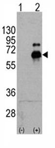 Western blot - S6K antibody (ab71013)